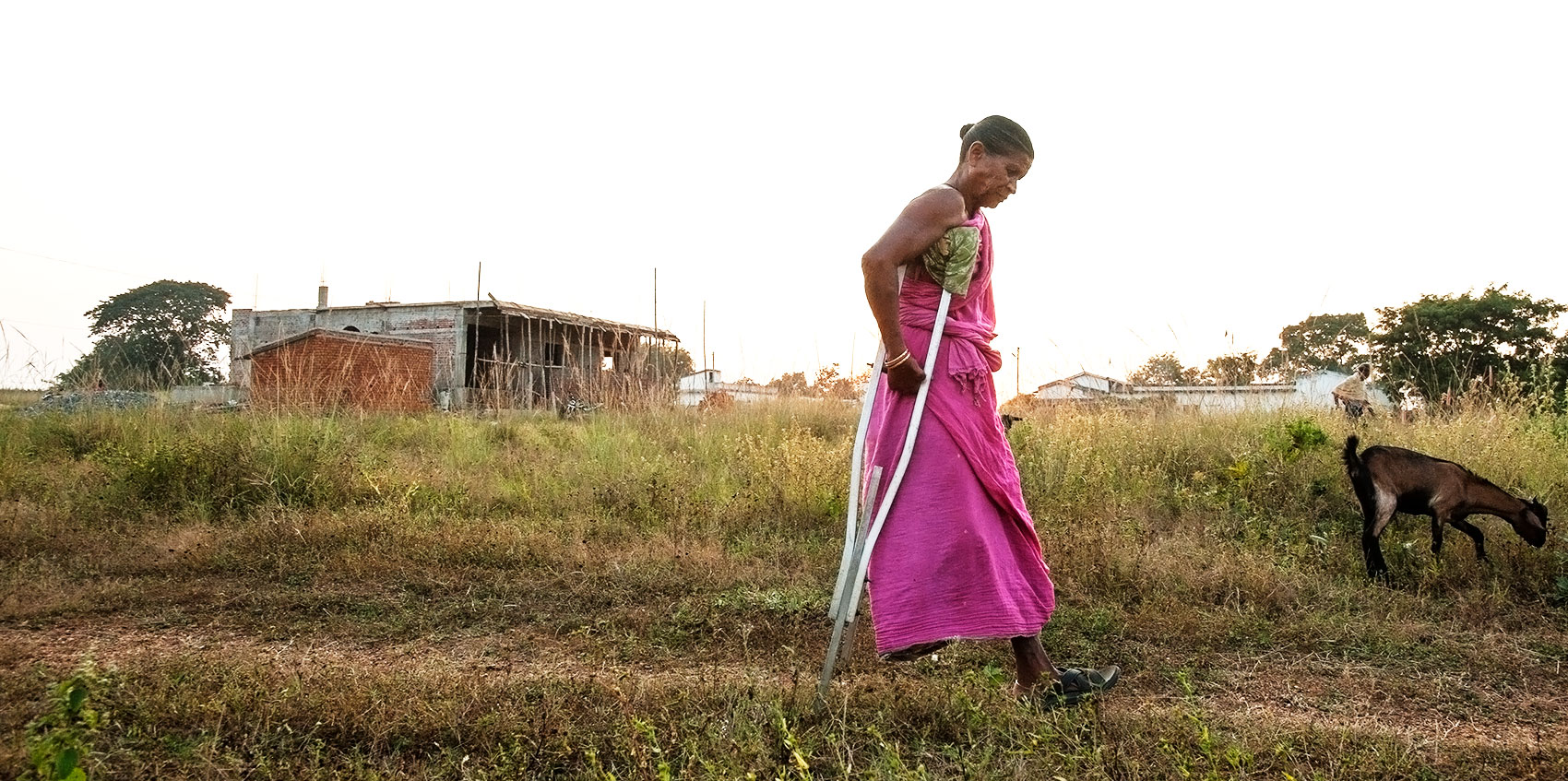 A leprosy patient who has lost a leg