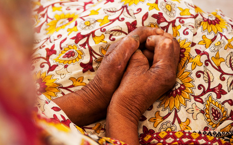 The damaged hands of leprosy patients limit job opportunities