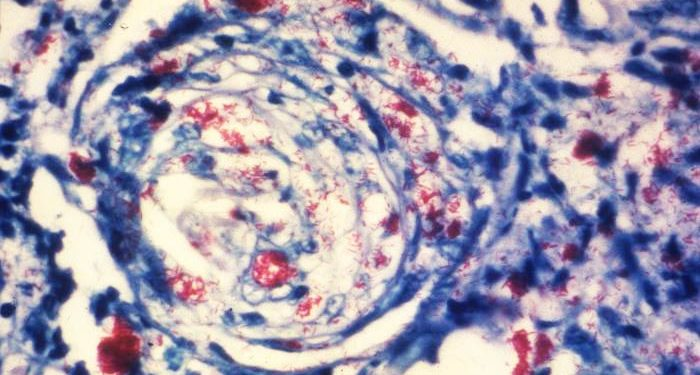 Photomicrograph of a skin tissue sample from a patient with leprosy.