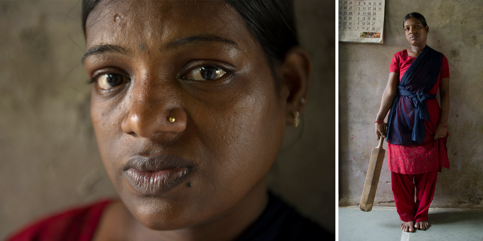 Woman who was beaten by her husband with a cricket bat